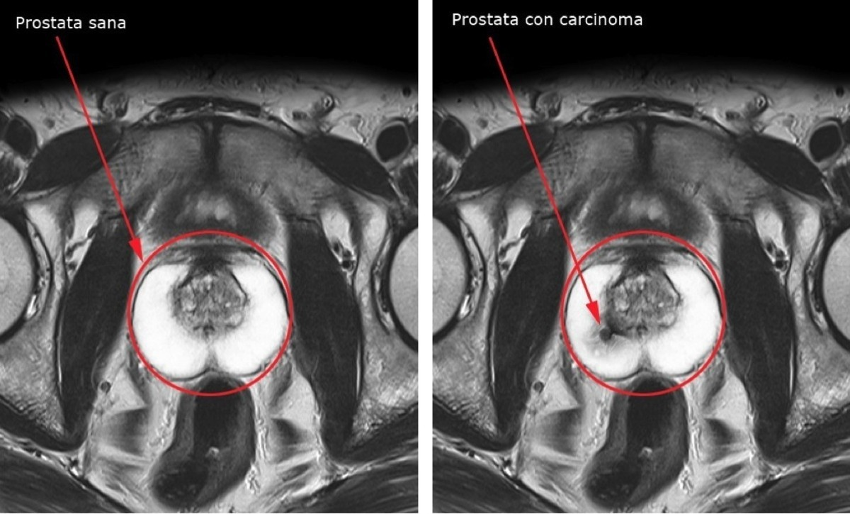 Tumore alla prostata, sintomi sconosciuti per 1 uomo su due