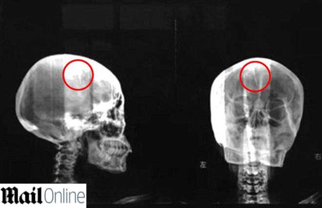 Mal di testa da 40: donna cinese aveva un ago nel cranio