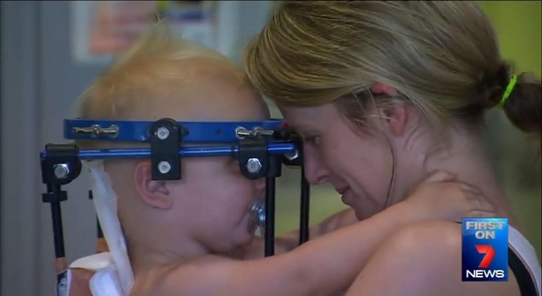Australia, il mago Askin riattacca la testa a bambino di 16 mesi