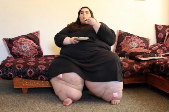 Ragazza perde 300 kg, fidanzato sconvolto. Ecco come è diventata