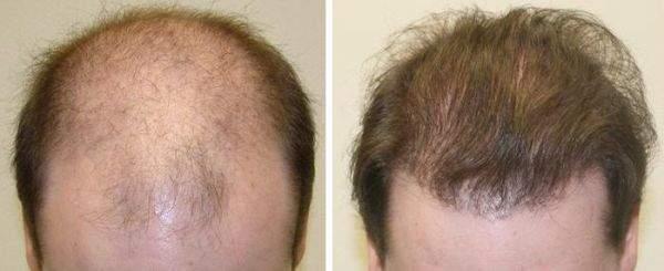 Muore durante trapianto di capelli: medici sotto choc