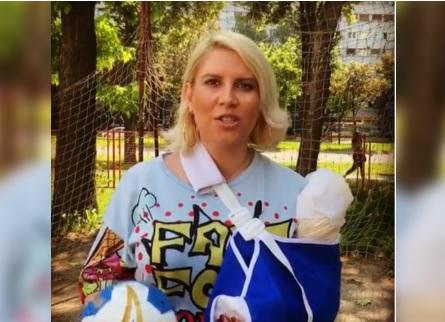 Un bus le strappa un braccio: presentatrice mostra come glielo hanno riattaccato