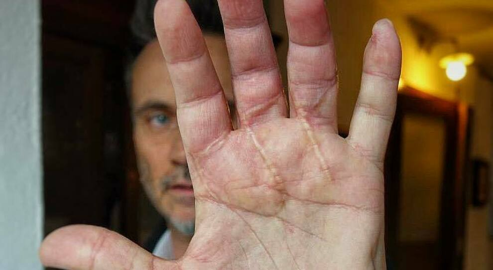 """Nek mostra la mano ferita: """"Mi ricordano l'importanza della vita"""""""